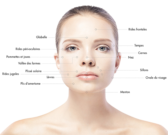 acidehyaluronique-chirurgie-medecine-esthetique-clermont-ferrand-docteur-llompart