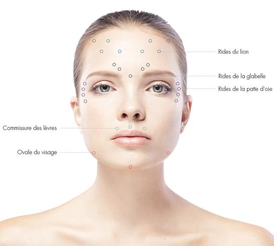 botox-chirurgie-medecine-esthetique-clermont-ferrand-docteur-llompart