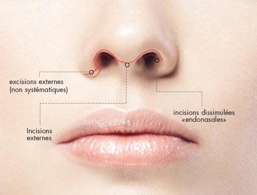 rhinoplastie-chirurgie-medecine-esthetique-clermont-ferrand-docteur-llompart